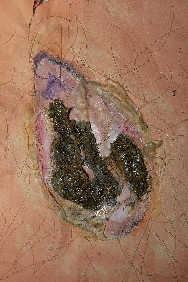 This is a picture of a simulated scab with an open wound and hairy skin by Richard Haley